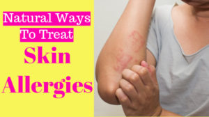 Skin allergies home remedies: 10 Ancient Ways to Overcome