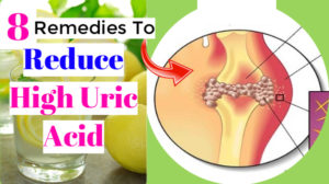 Home remedies to reduce high uric acid level