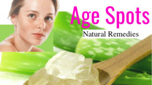 Age spots natural remedies | That work wonders on face