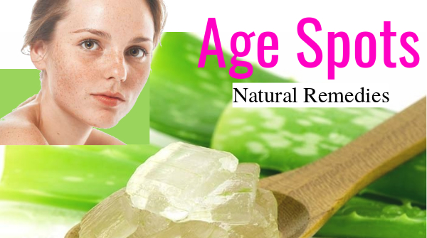 age spots natural remedies