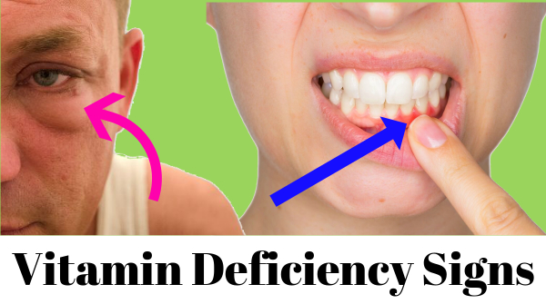 signs of vitamin deficiency
