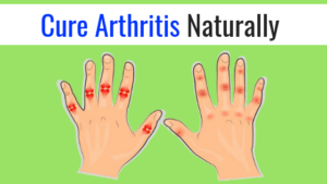 Home Remedies For Arthritis: 5 Natural ways to get pain relief