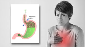 Natural remedies for Heartburn: 8 Effective ways to get relief
