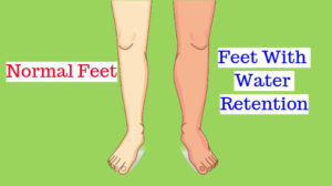 Best ways to cure water retention naturally