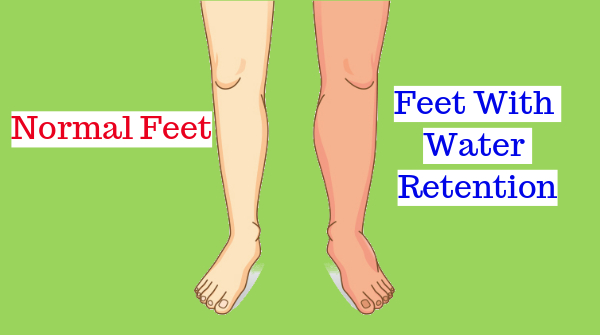 cure water retention naturally