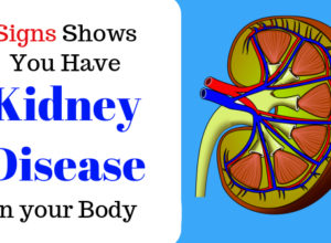 kidney disease early signs