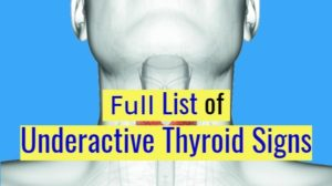 List of underactive Thyroid symptoms (Hypothyroidism)