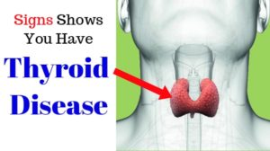 Symptoms of underactive thyroid | Common for men and women