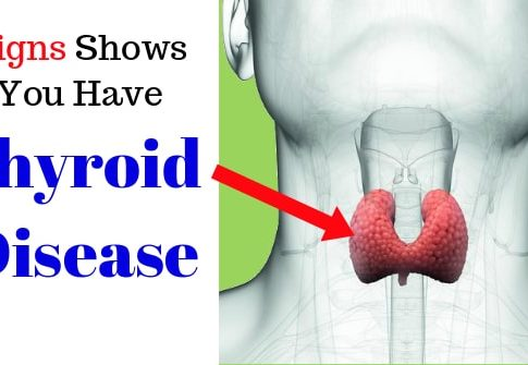 Symptoms of Underactive Thyroid