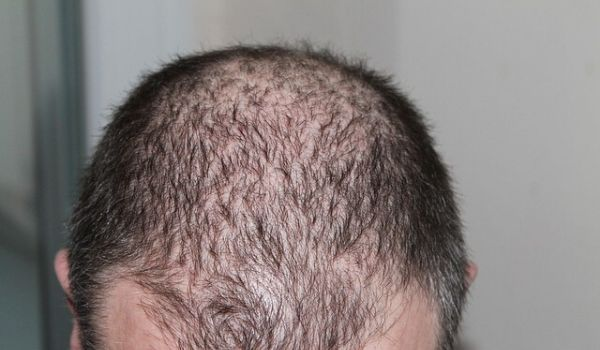 Major Hair Loss causes in men