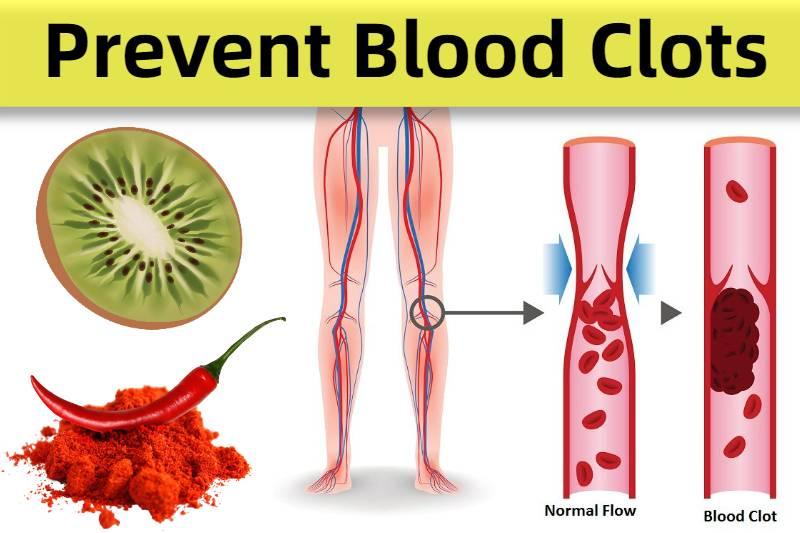 foods that prevent blood clot